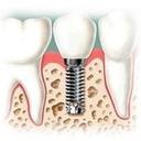 Dr. Jorge Duran Dehesa diplomado en ortodoncia y ortopedia maxilar, diplomado en estetica dental, diplomado en implantes, diplomado en endodoncia
