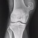 Dr. Romeo Tecuatl Gomez Ortopedia y Trauma. Tumores óseos.