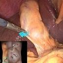 Dr. Cabral Endoscopia Cirugia General, Gastroenterologia y Endoscopia Digestiva.